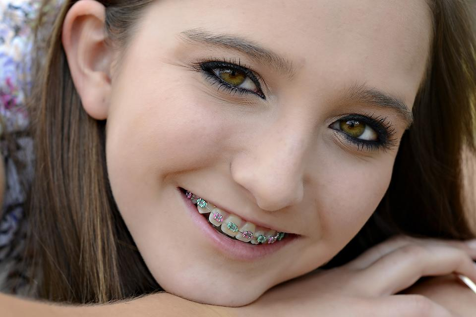 Braces FAQ: 8 Things Parents Need to Know When Their Kid Needs Braces!