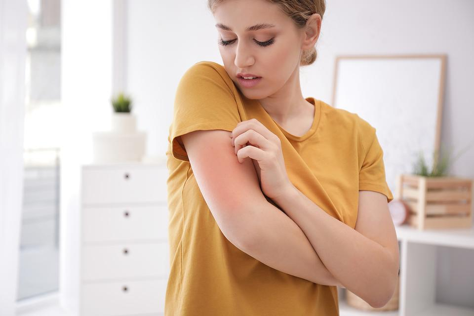 Seasonal Allergies Got You Down? 5 Natural Antihistamines to Try for Your Summer Allergies