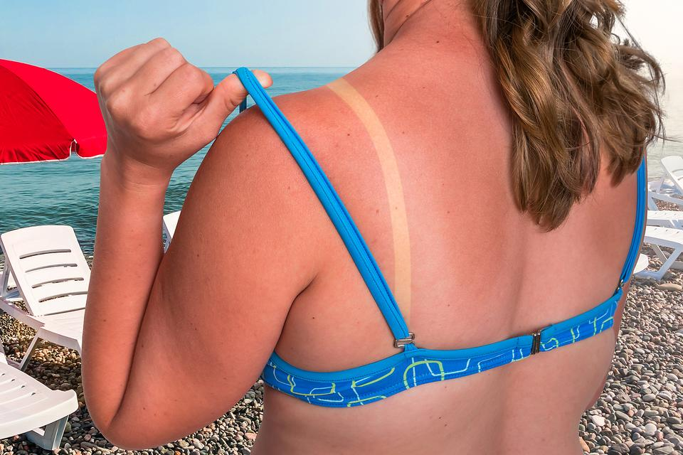 Treating Sunburn: Are You Making These 10 Common Mistakes After a Bad Sunburn?