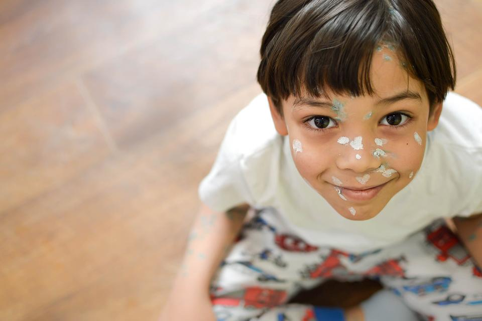 Chicken Pox & Measles: How Baking Soda Alleviates Skin Irritations From These Diseases