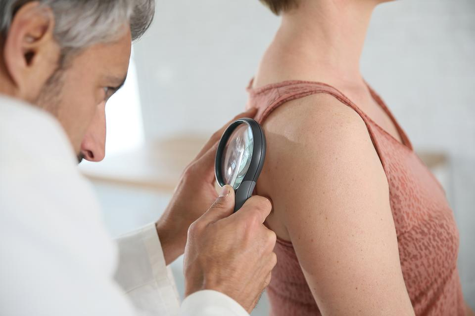Melanoma: Here's How to Spot a Bad Spot That Could be Skin Cancer!