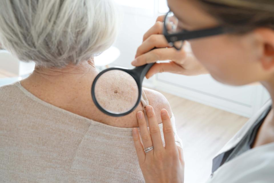 Melanoma: Why You Need to Schedule a Skin Cancer Screening Now