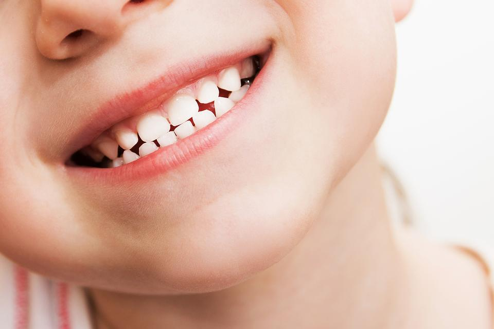 Teeth Grinding & Kids: 6 Reasons Why Your Child May Grind His Teeth!