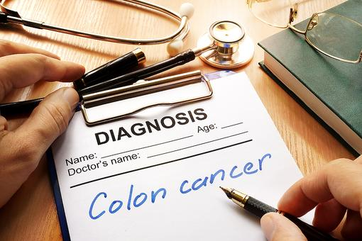Colon & Rectal Cancer Screenings: American Cancer Society Updates Screening Guidelines