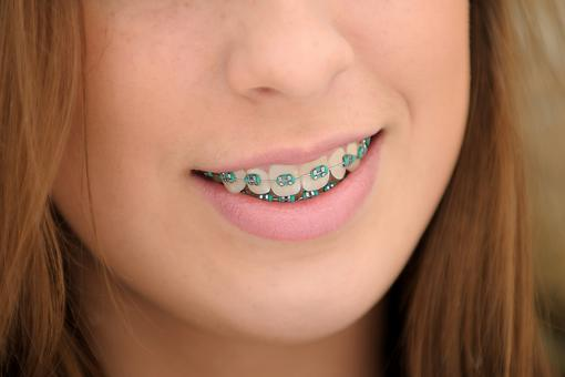 How Much Do Braces Cost? A Lot! Here Are 5 Ways to Protect Your Investment