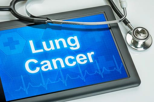Lung Cancer Awareness Month: 6 Facts About the Most Commonly Misunderstood Cancer