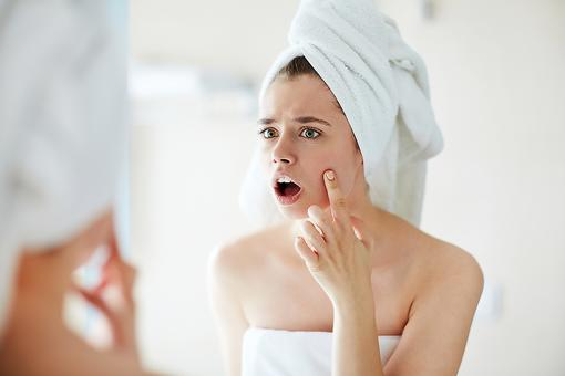 Adult Acne: 3 Space-aged Skin-care Solutions for Blemish-free Skin!