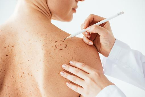 Treatments for Melanoma: A ​Vaccine Targeting Deadly Melanoma Shows Early Promise